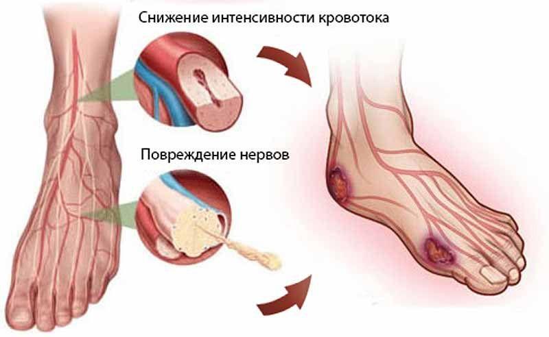 Кровоток при диабете