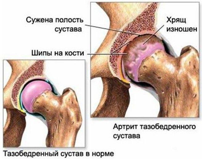 Заболевание артрит