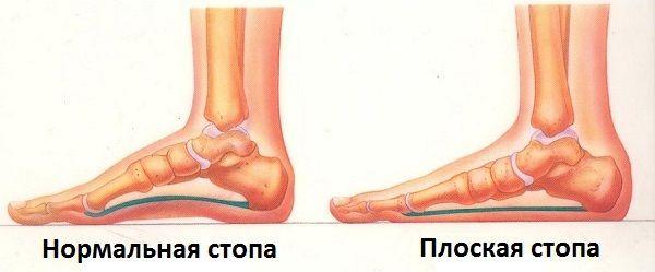 Здоровая и плоская стопы