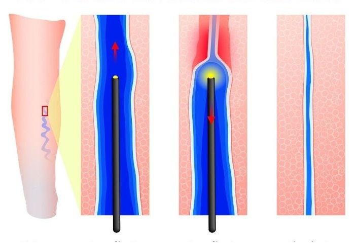 Лазерное лечение варикоза ног