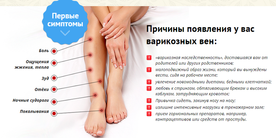 Симптомы варикозной болезни