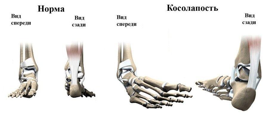 Косолапость ног