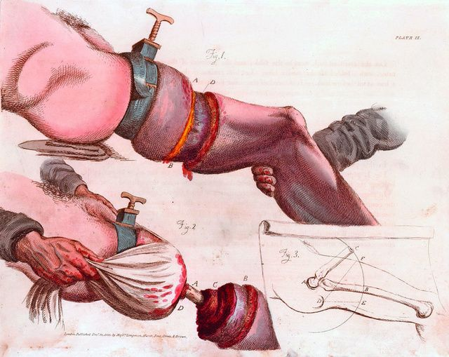 Удаление больной ноги