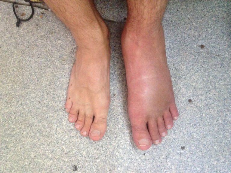noga opukhla i pokrasnela