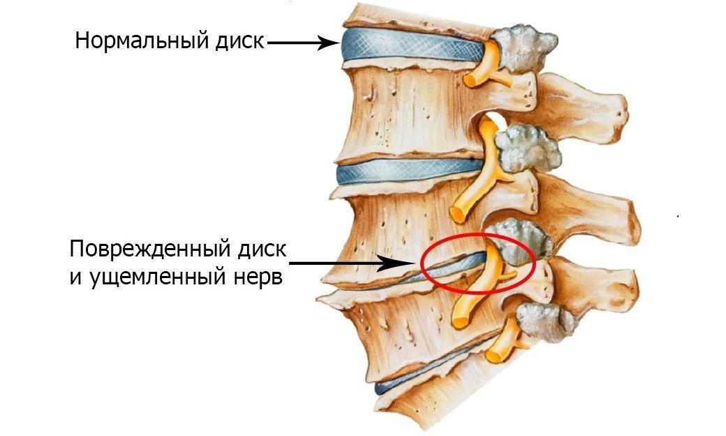 Заболевание остеохондроз