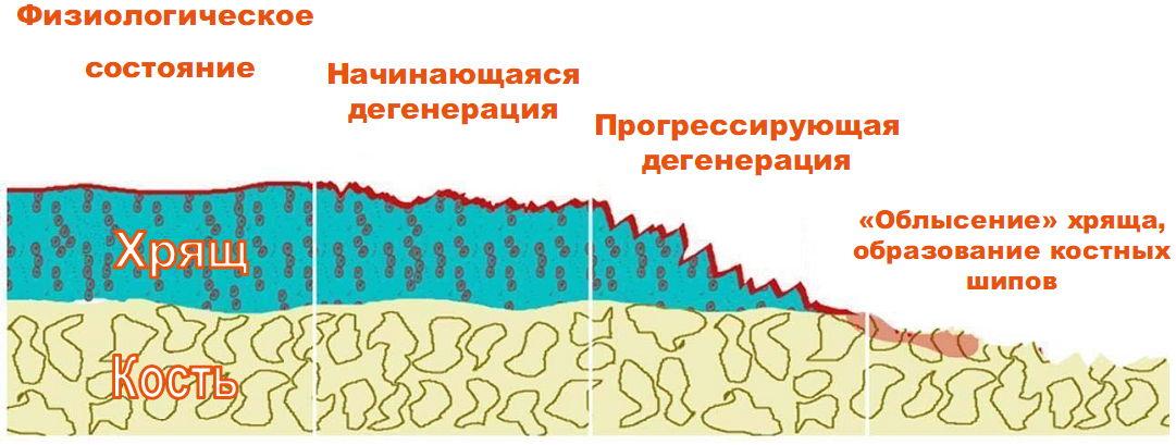 Восстановить хрящ клетками костного мозга