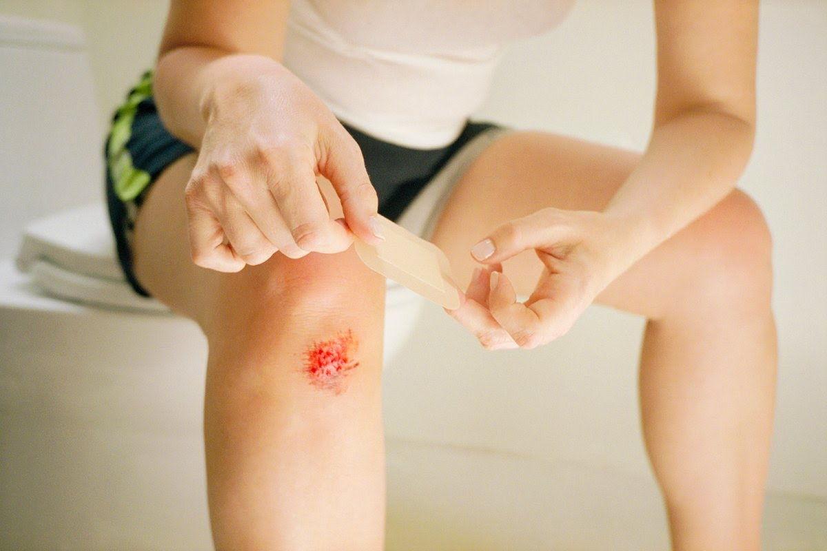 Кровь при ушибе колена