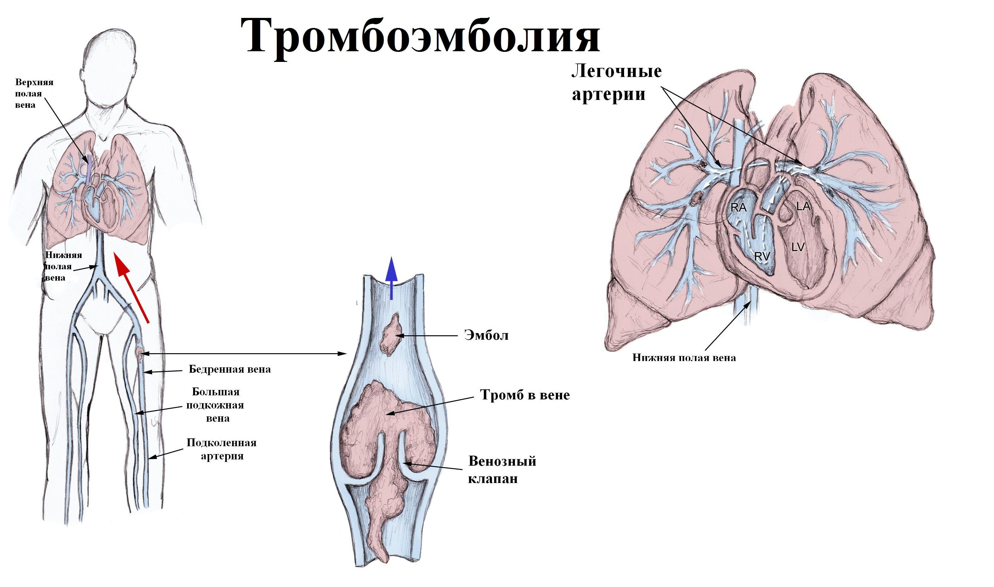 Осложнение тромбоза