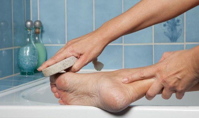 Как ухаживать за кожей стоп