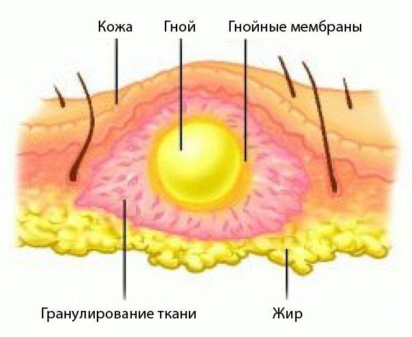 Клиника воспаления