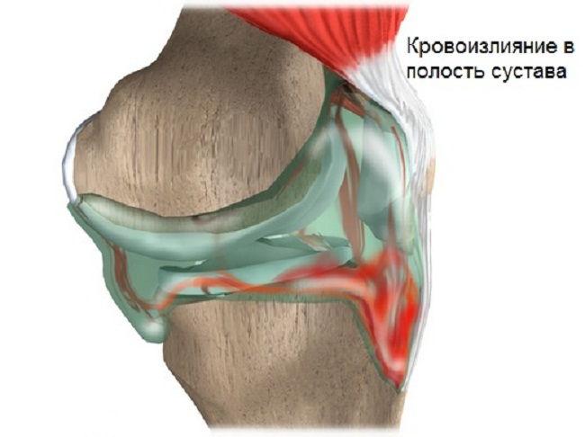 Болезнь коленного сустава