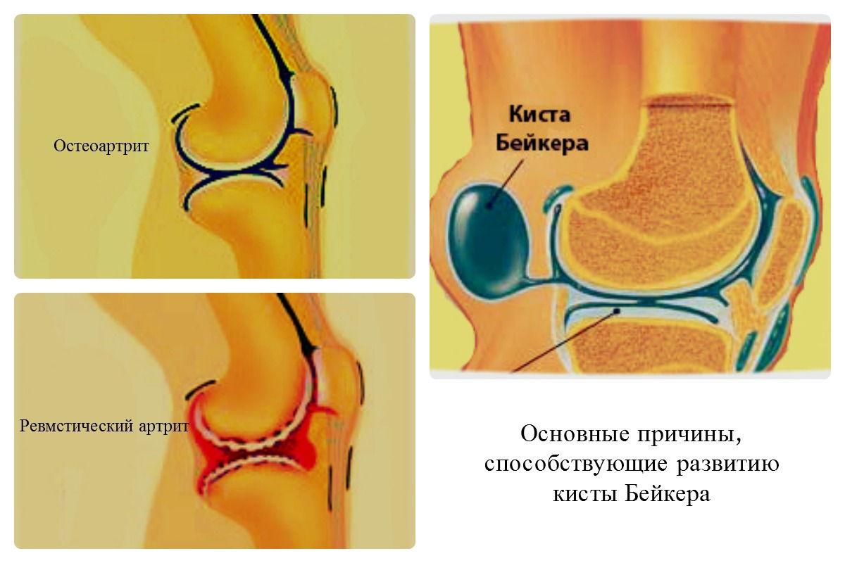 Киста колена