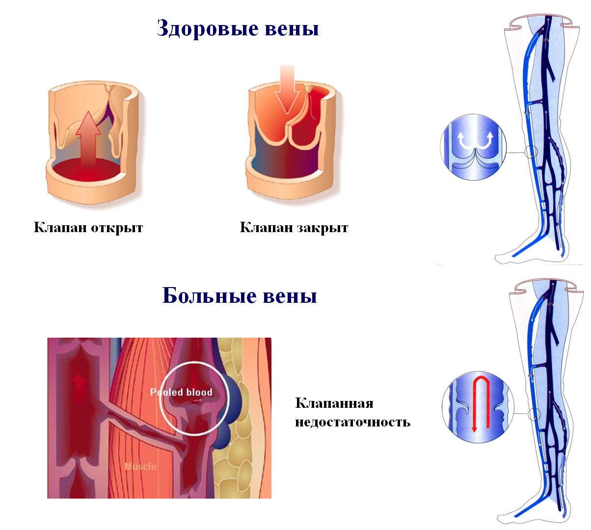 Клапанная недостаточность вен в ногах