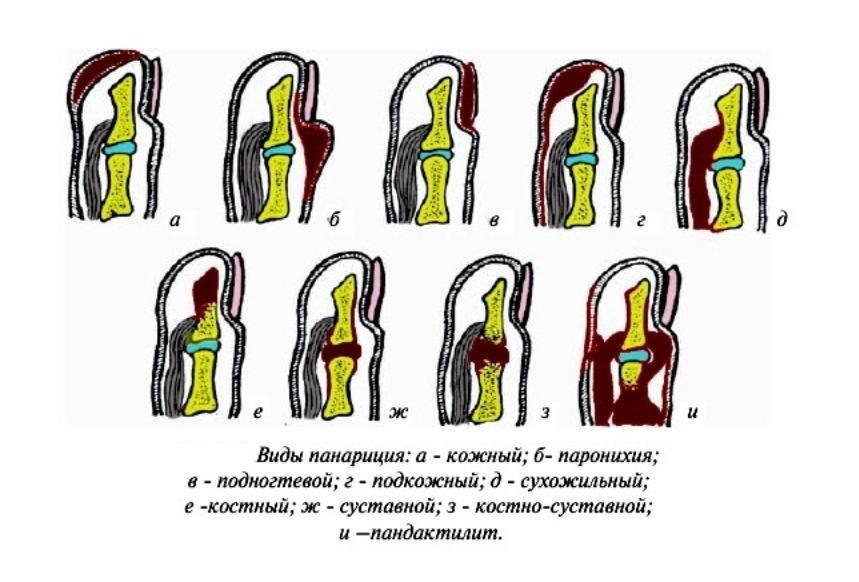 Панариций пальца на ноге