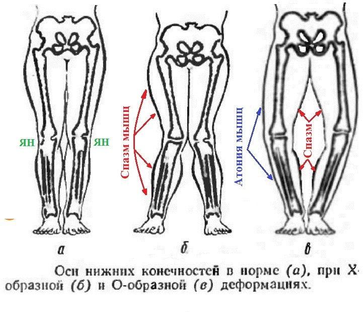 Виды кривых ног