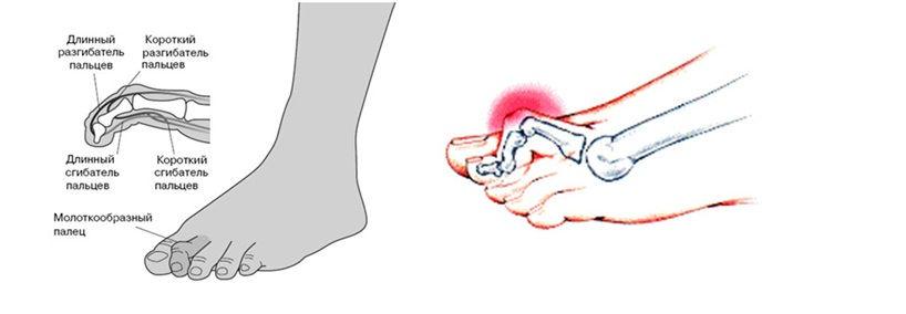 Кривой палец ног