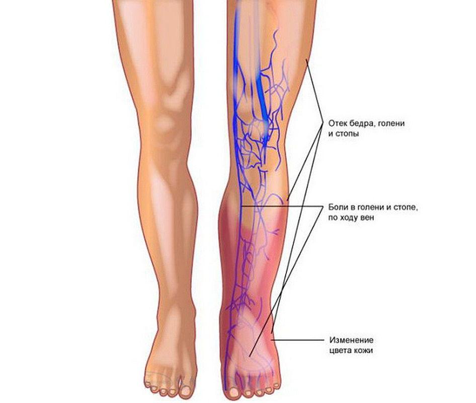 Симптомы острого тромбоза