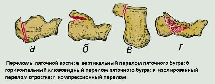 Перелом пятки