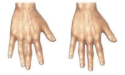 Разделение пальцев