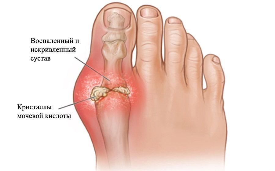 Воспаление одного из суставов стопы