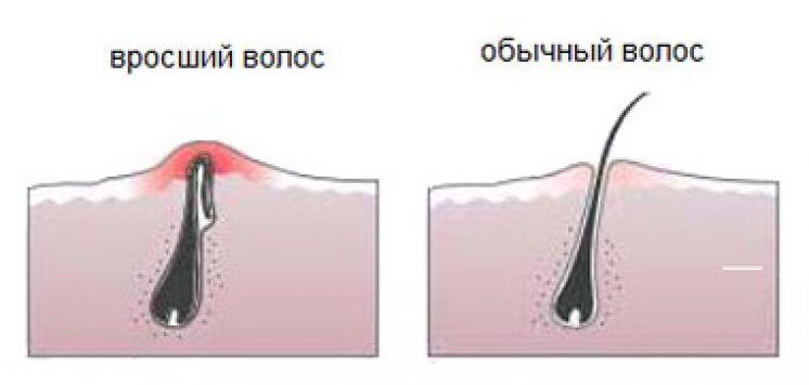 Клиника вростания влос