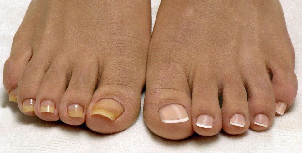 Пожелтение ногтевой пластины