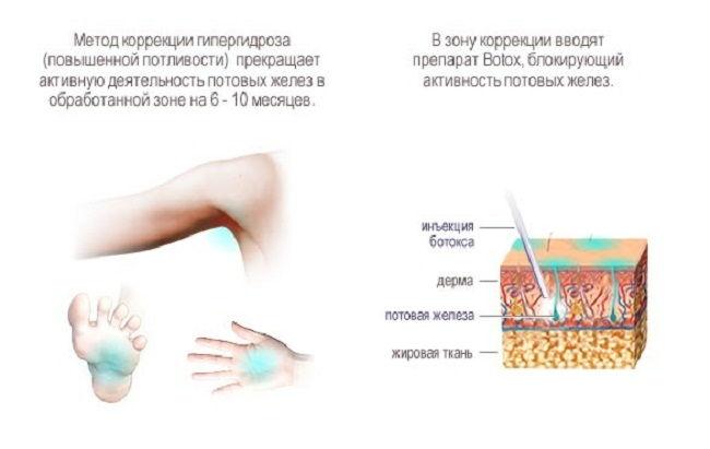 Инъекции ботокса