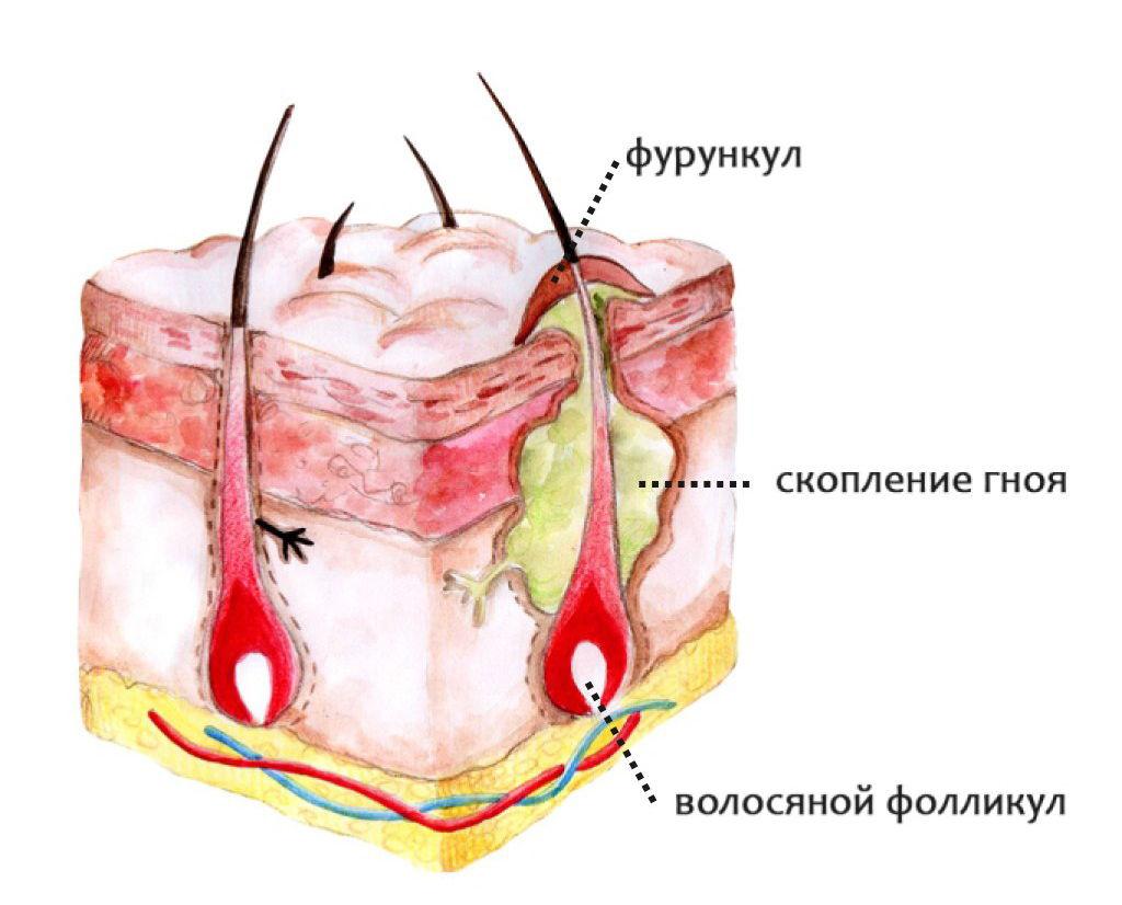 Анатомия фурункула