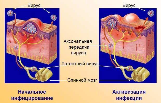 Распространение заболевания