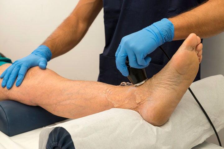 Сканирование вен на ногах