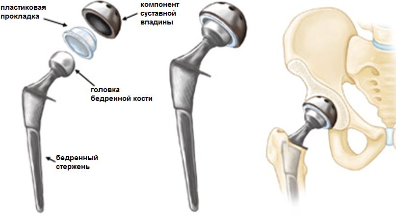 Эндопротез таза