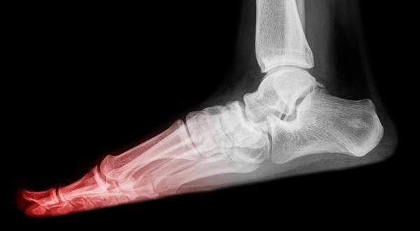 Рентгеновский снимок стопы