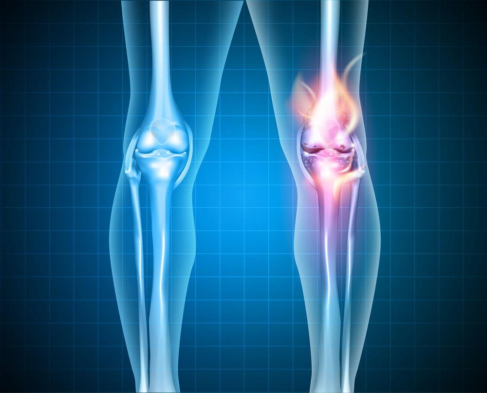 Горит коленный сустав
