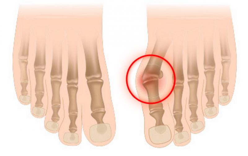 Шишка пальца ног