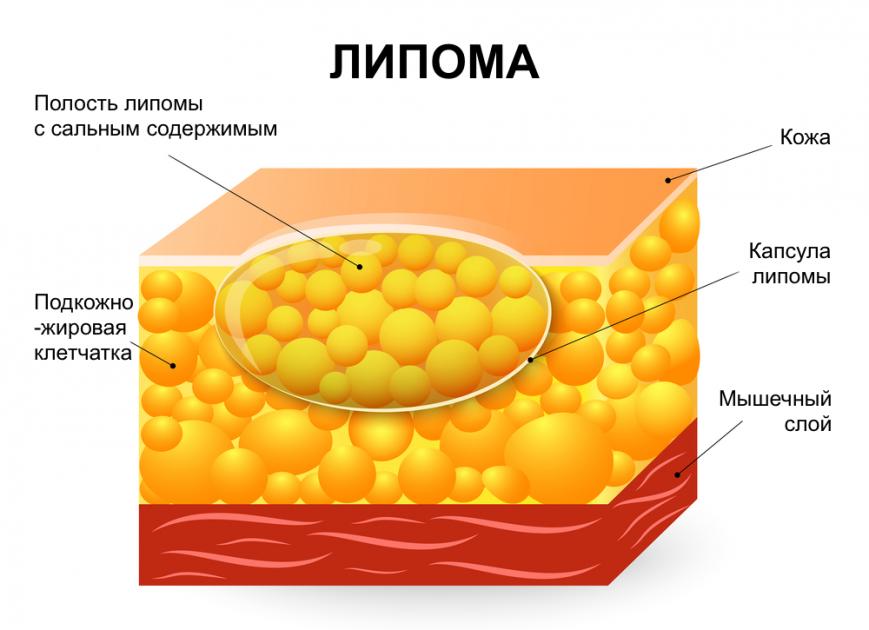 Анатомия липомы