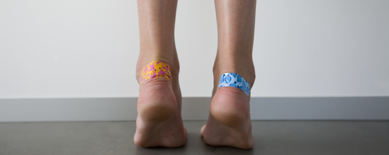 mozoli na nogah
