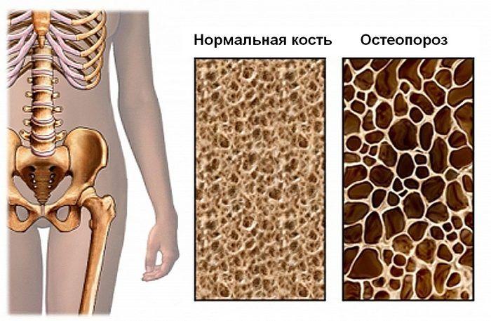 Заболевание костей