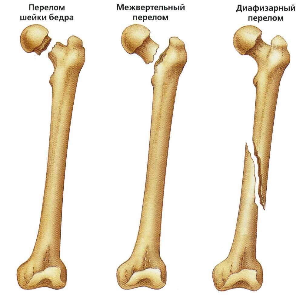 Изображение - Перелом левого тазобедренного сустава perelom-bedra
