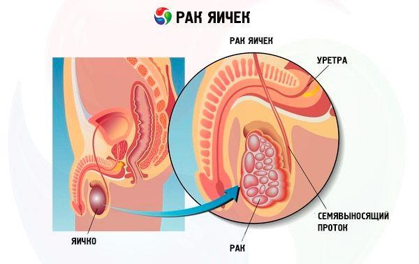Рак яичка у мужчин