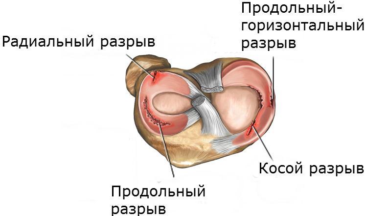 Травмы менисков