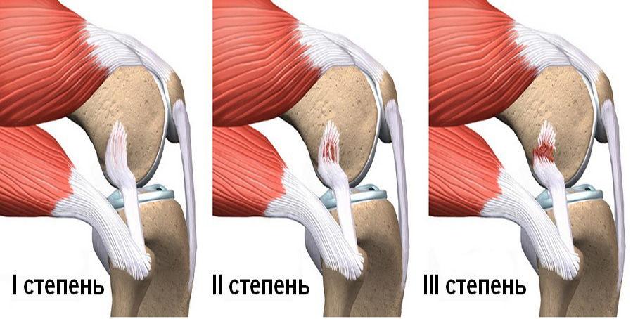 Травмирование связок колена