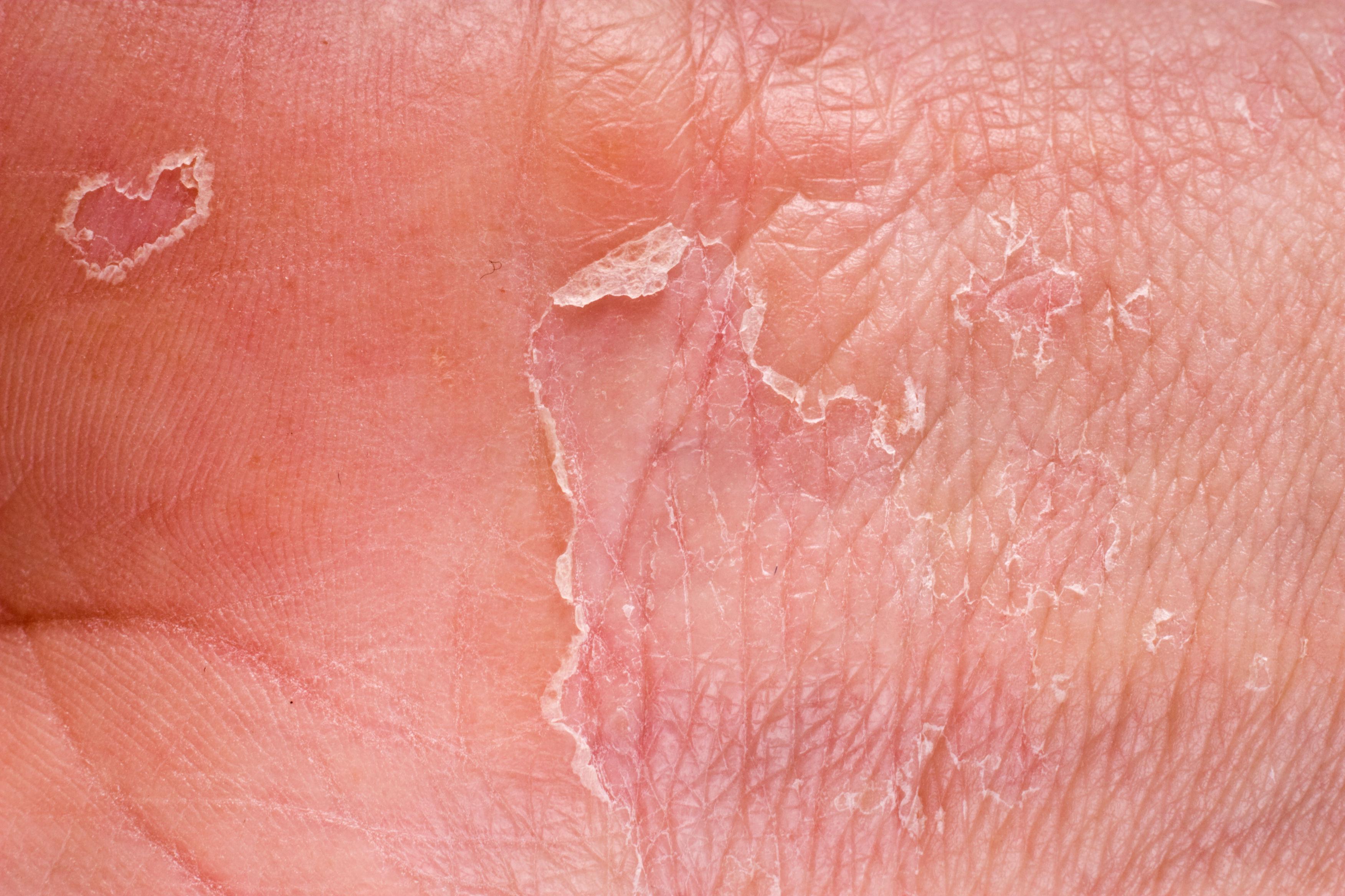 Шелушение кожи члена 7 фотография