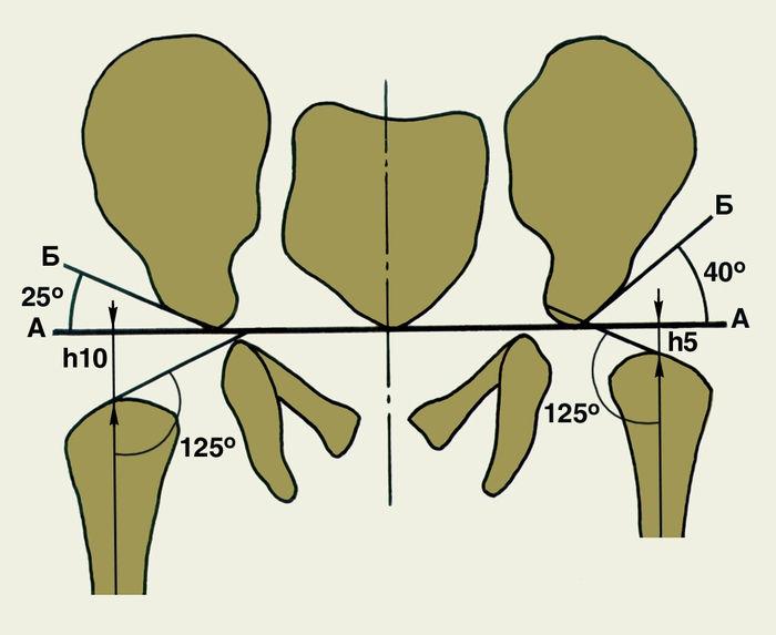 Схема для рентгенологов