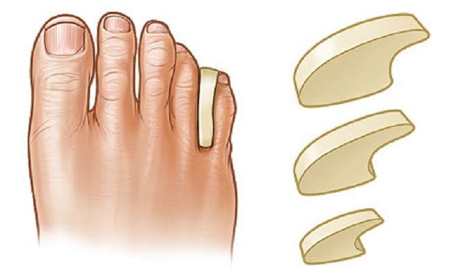 Прокладки между пальцами