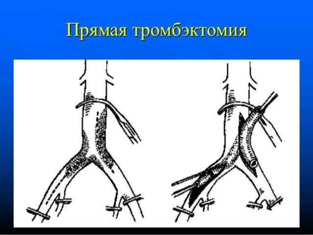 Извлечение тромба