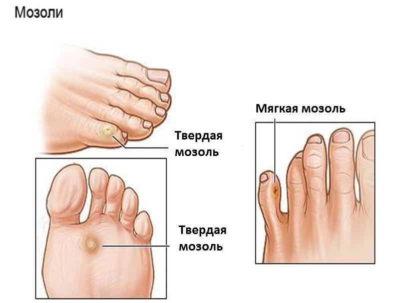 Разновидности мозолей ног