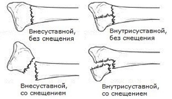 Варианты внутрисуставного перелома