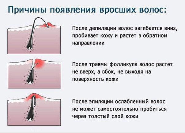 Врастание волос после депиляции