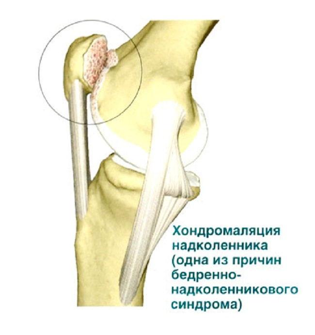 Хондромаляция коленной чашечки
