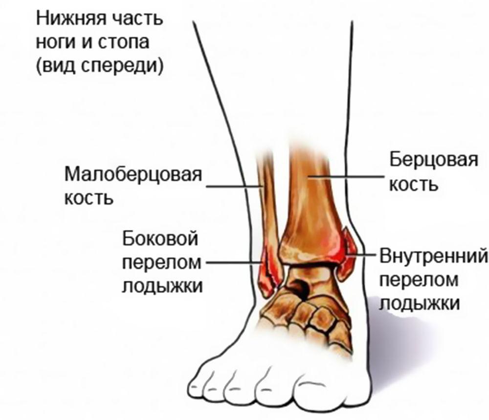 Переломы лодыжки